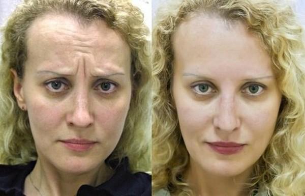Благодаря «работе» препарата происходит разглаживание кожи