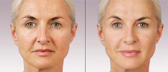 Фото до и после введения филлеров Yvoire №1