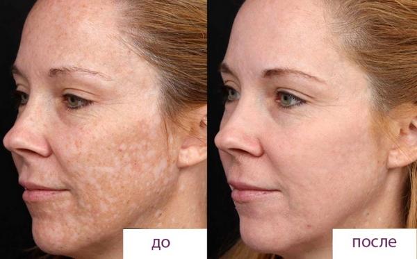 Фото до и после ретиноевого пилинга №1