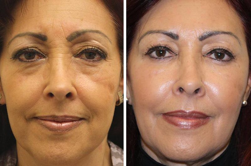 Фото до и после введения филлеров