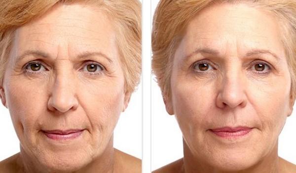 С помощью такого препарата можно улучшить внешний вид лица