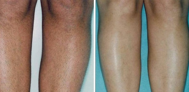 Фото до и после эпиляции диодным лазером №1
