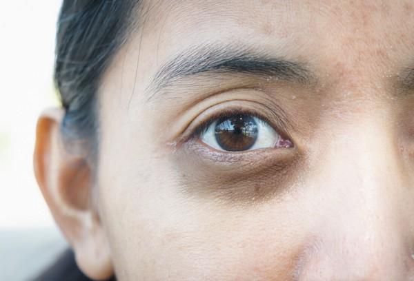 При недостатке аскорбиновой кислоты могут возникнуть «глаза панды»