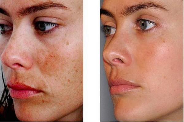 Благодаря такому пилингу получится надолго забыть о пигментации кожи