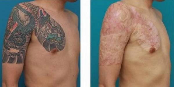 Раньше татуировки удаляли путем иссечения кожи