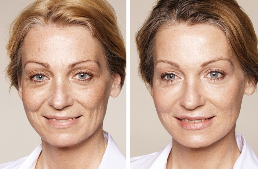 Фото до и после введения филлеров Элансе №1