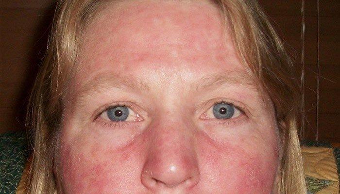 Один из побочных эффектов термолифтинга - выраженная гиперемия кожи