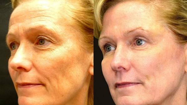 Фото до и после использования средства Ботокс №2