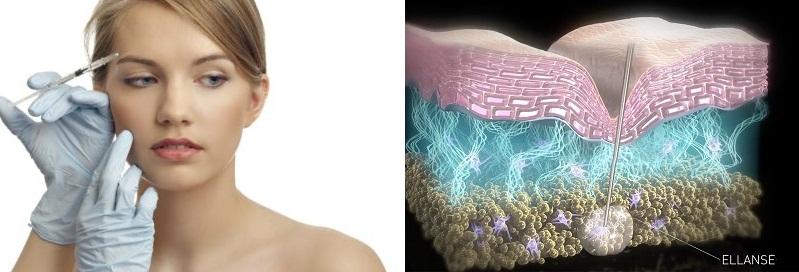 После введения филлера гель заполняет морщины и обеспечивает удержание влаги в тканях