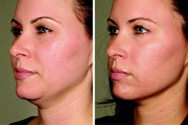 Фото до и после процедур ультразвукового SMAS-лифтинга для подтяжки скул