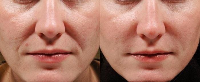 Фото до и после контурной пластики носогубных складок №3