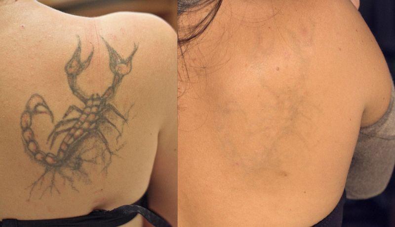 Фото до и после курса процедур по удалению татуировки лазером №3