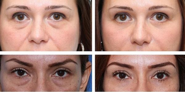 Фото до и после курса процедур лимфодренажного массажа лица №3