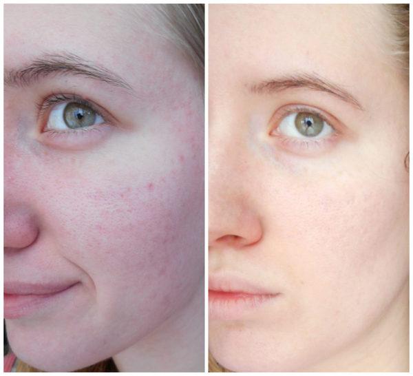 Фото до и после курса процедур миндального пилинга №2