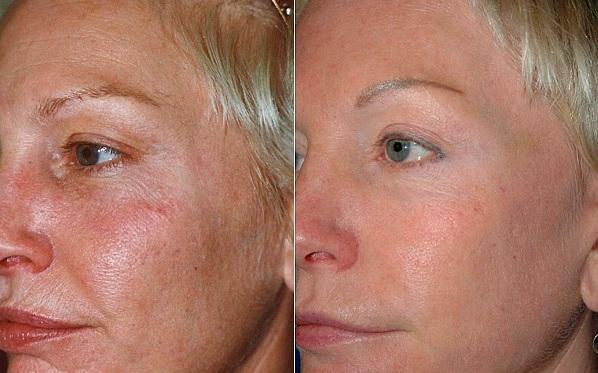 Фото до и после процедуры пируватного пилинга №3
