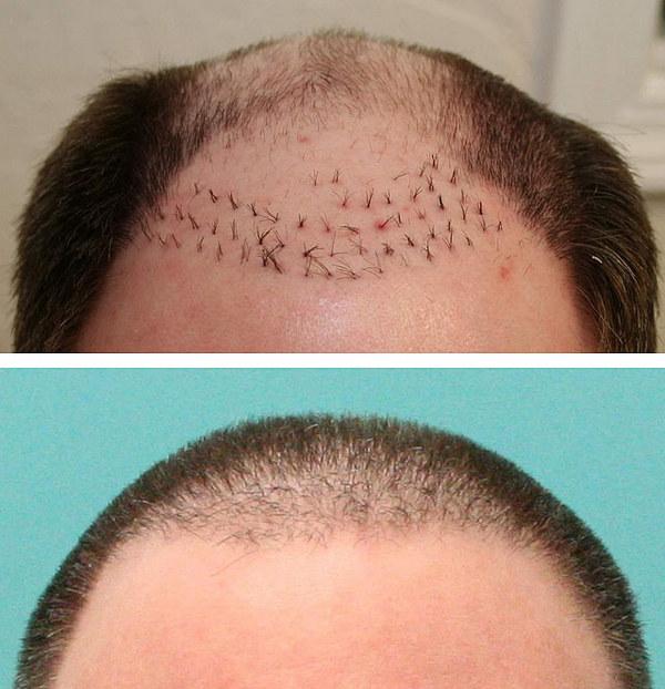 Фото до и после трансплантации волос методом FUT