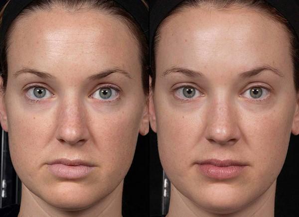 Фото до и после использования средства Surgiderm 24 ХР