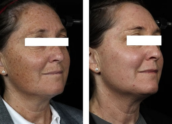 Фото до и после использования александритового лазера для удаления пигментных пятен №2