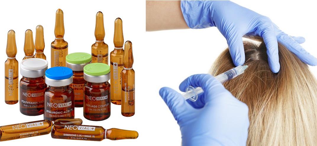 Растворы для мезотерапии содержат необходимые волосам витамины и микроэлементы
