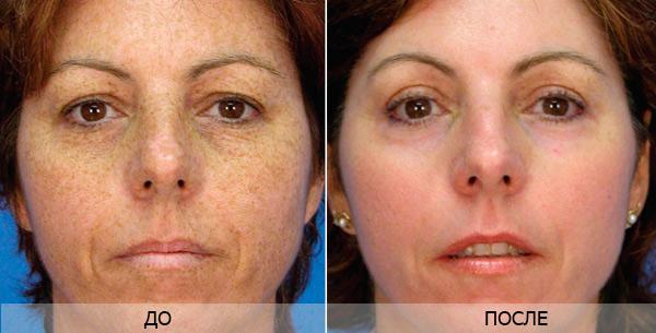 Фото до и после использования фракционного лазера для удаления пигментных пятен №1