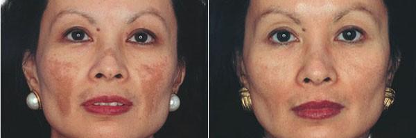 Фото до и после использования фракционного лазера для удаления пигментных пятен №2