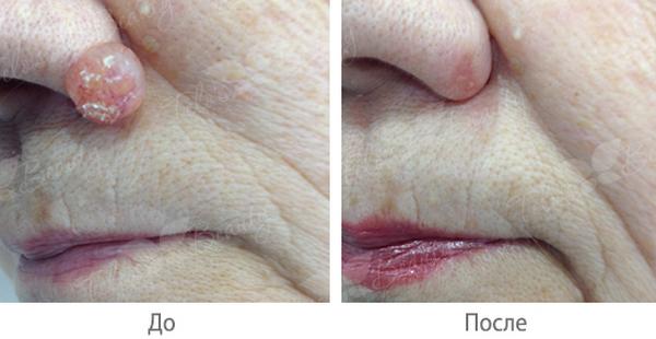 Фото до и после хирургического иссечения бородавки