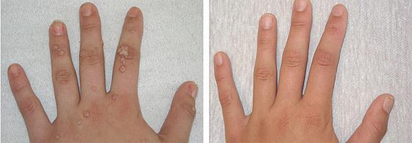 Фото до и после удаления бородавки лазером