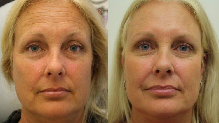 Фото до и после уколов ботокса №3