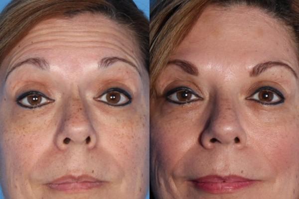 Фото до и после процедуры с использованием Ксеомина