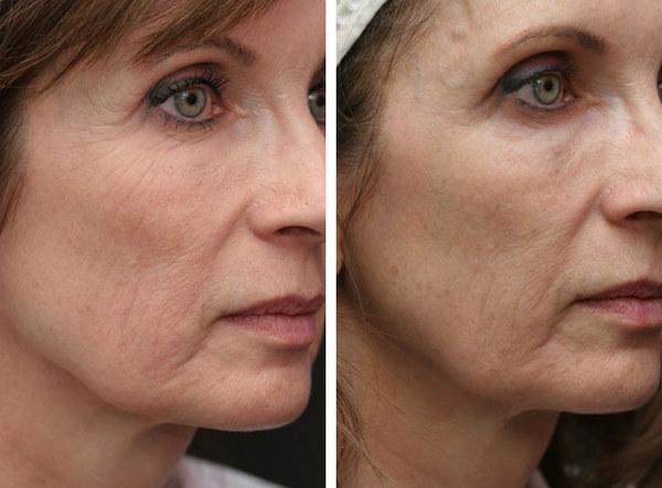 Фото до и после процедуры с использованием Миоблока