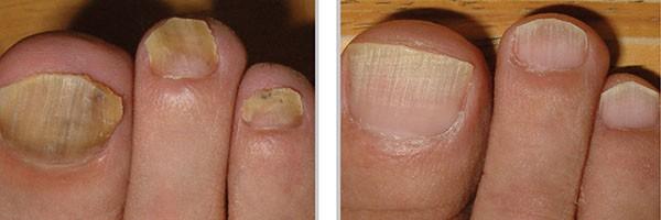 Фото до и после лечения грибка ногтей лазером №1