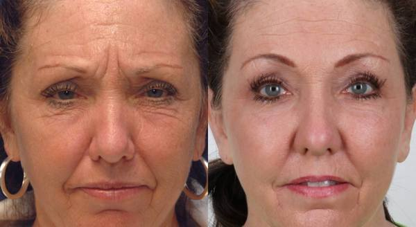 Фото до и после использования средства Диспорт №2