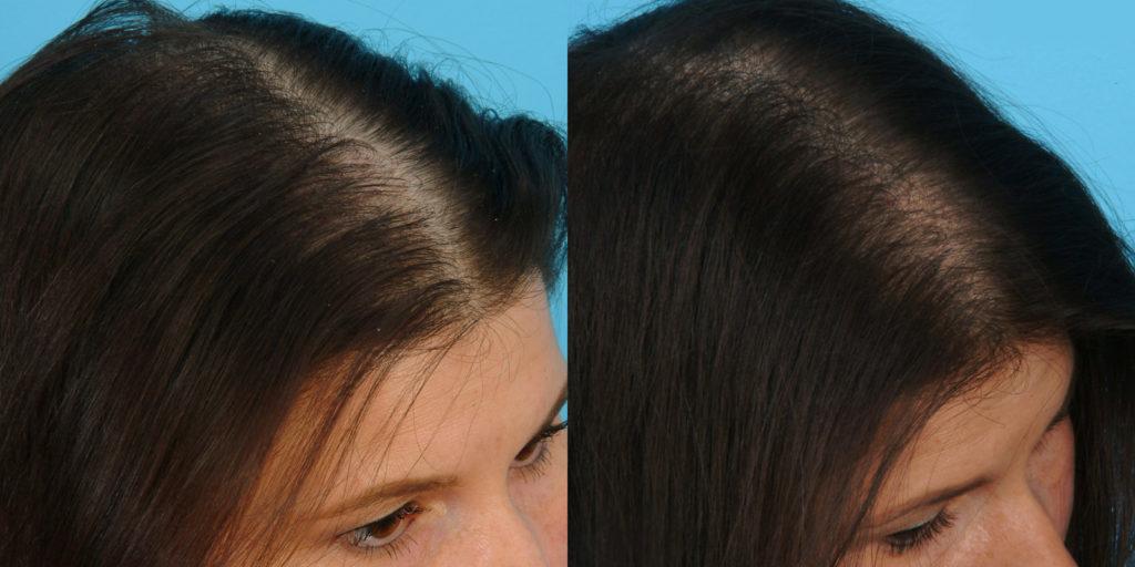 Фото до и после лечения диффузной алопеции с помощью озонотерапии №1
