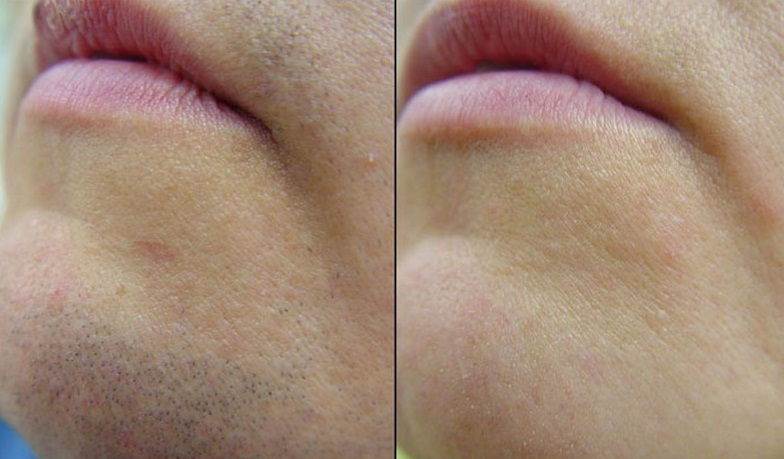 Фото до и после эпиляции диодным лазером №3