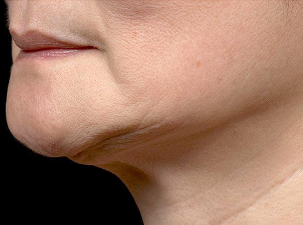 Термаж показан для коррекции возрастных изменений кожи