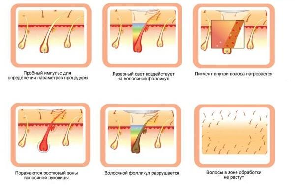 Механизм действия неодимового лазера