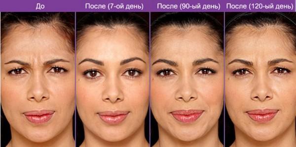 Фото до и после инъекций «Ксеомина» №1