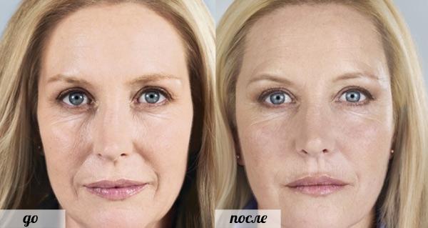 Фото до и после использования средства «Радиесс» №2
