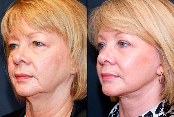 Фото до и после контурной пластики лица №1
