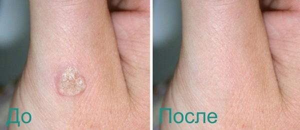 Фото до и после лазерного удаления бородавки №1