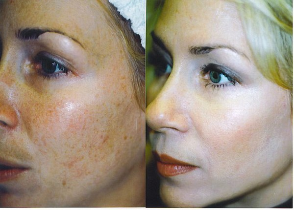 Фото до и после курса процедур ферулового пилинга №1