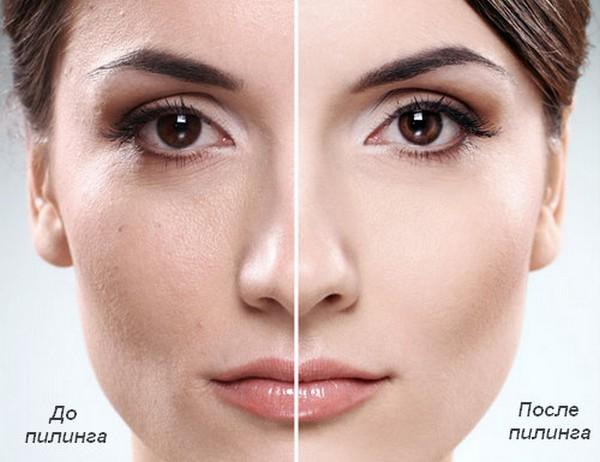 Фото до и после курса процедур энзимного пилинга №1