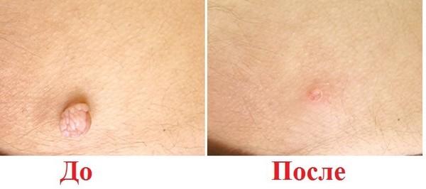 Фото до и после лазерного удаления папиллом №2