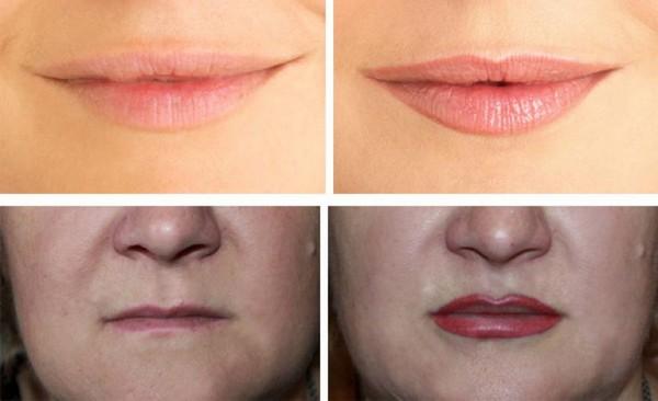 Фото до и после микроблейдинга губ №1