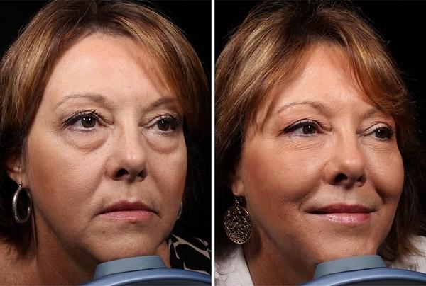 Фото до и после биоармирования лица №1