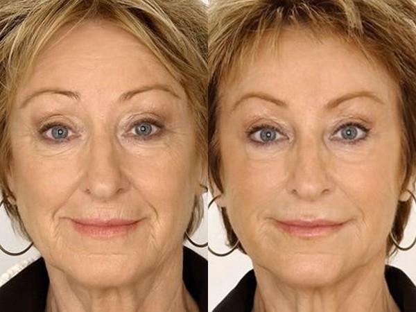 Фото до и после использования средства Теосиаль (Teosyal) №1