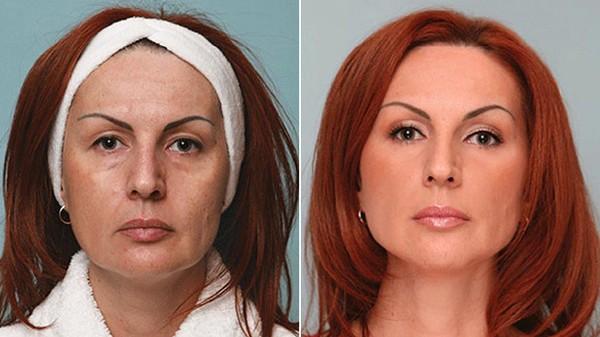 Фото до и после процедуры SMAS-лифтинга на аппарате Ulthera System №2