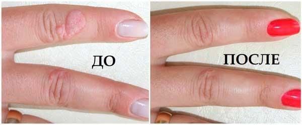 Фото до и после удаления бородавки жидким азотом №1