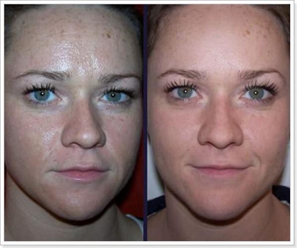 Фото до и после курса процедур ультразвукового пилинга лица №1