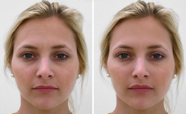 Фото до и после липофилинга №1